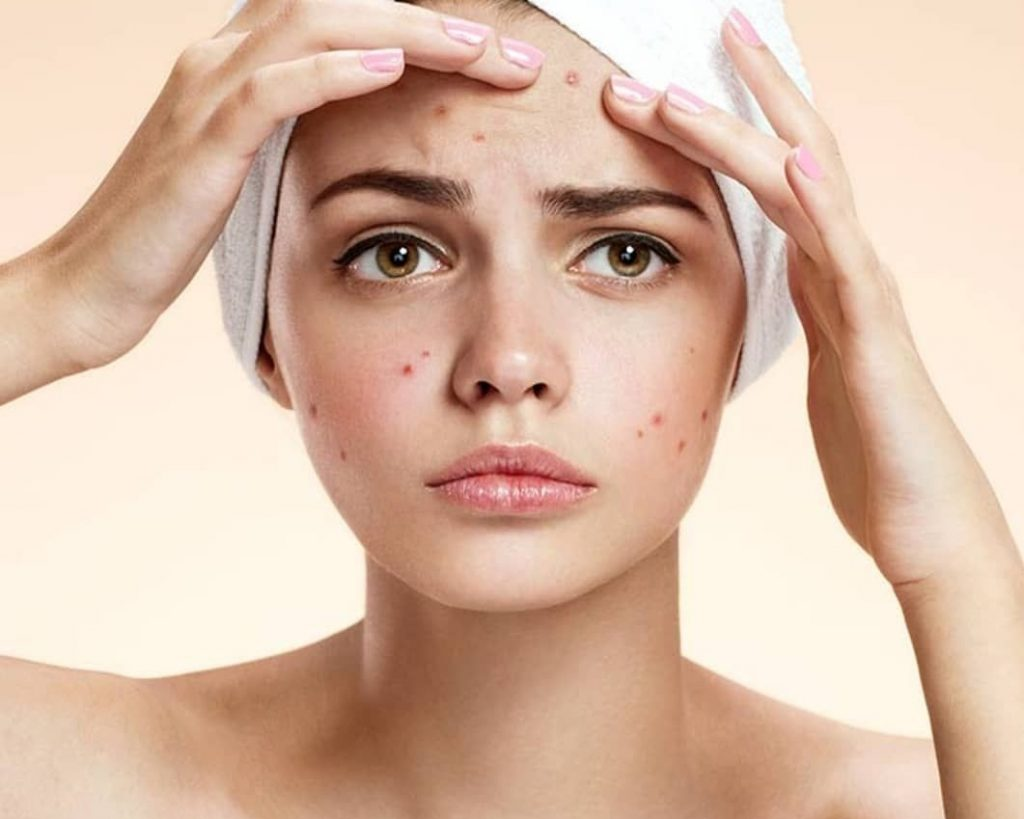 Blemishes And Increase In Hyperpigmentation On Faceon On Face